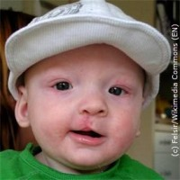 Erhöhter Muskeltonus Baby Ursache